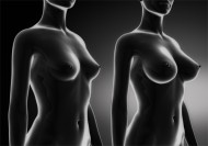 Conférence Esthétique : Les dernières innovations en plastie mammaire