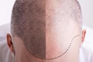 Démonstration Esthétique : Le roller dans la dermopigmentation du cuir chevelu