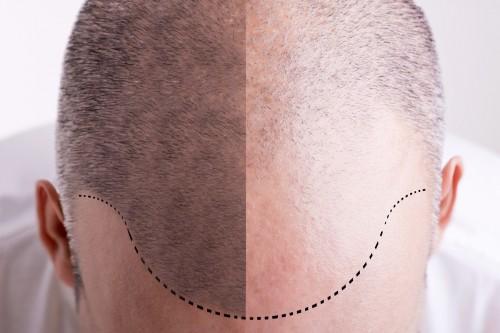 Le roller dans la dermopigmentation du cuir chevelu