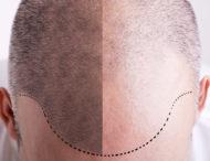 Conférence Esthétique : La micropigmentation capillaire