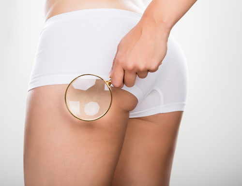 quel massage  quelle technologie pour quel type de cellulite