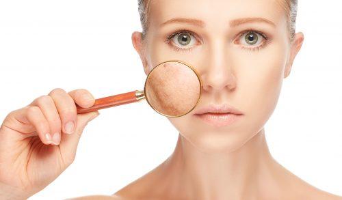 Comprendre l'Acné, la rosacée et l'acné rosacée d'une perspective médico-esthétique