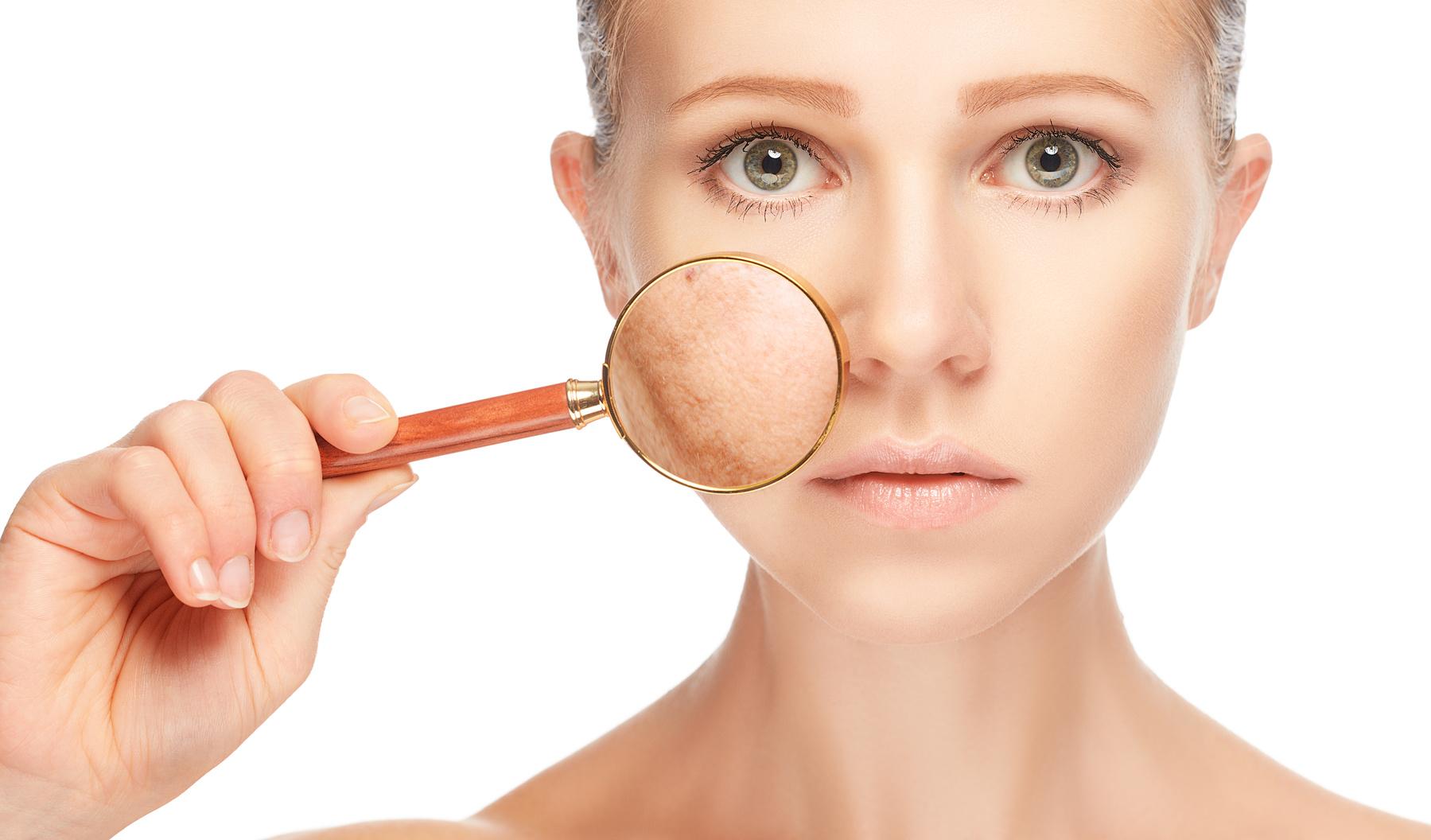 Comprendre l'Acné, la rosacée et l'acné rosacée d'une ...