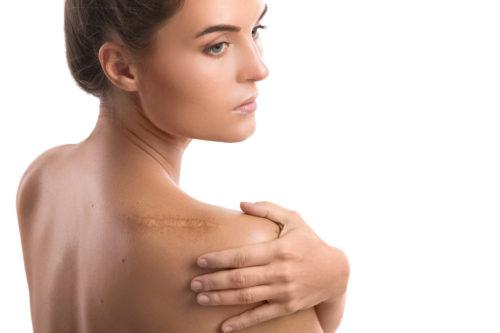 Le maquillage permanent au secours des peaux cicatricielles post opératoires et re-attribution sexuelle