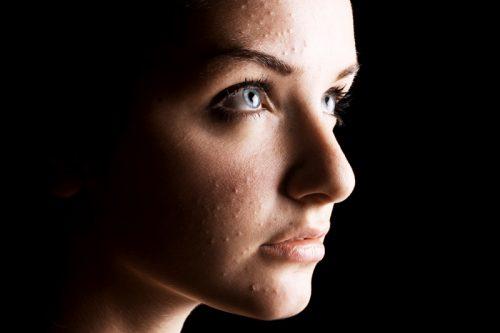 Acné : un casse-tête pour l'esthéticienne ?