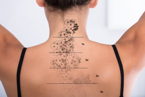 Les différentes méthodes pour détatouer un maquillage permanent